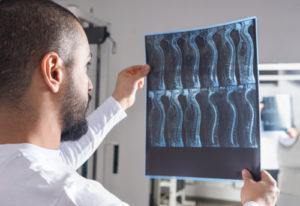 spinal cord injuries lawyer brick nj